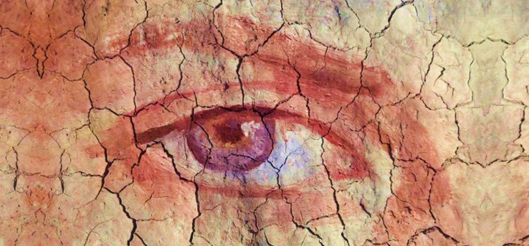 Síndrome de ojo seco ¿A qué se debe? ¿Cómo tratarlo?