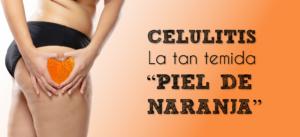 """Celulitis, la tan temida """"Piel de Naranja"""""""